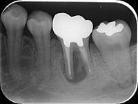 「抜歯するしかない」と言われた症例